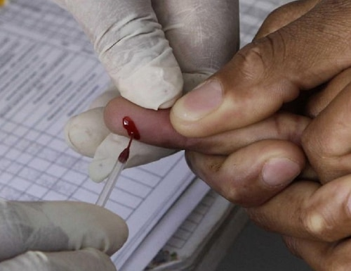 A patient undergoes a blood test for HIV inside a mobile health care clinic. (Denis Farrell/AP)