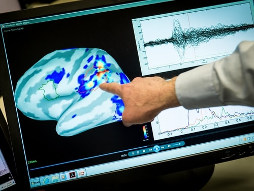 Magnetoencephalography (MEG) Laboratory scientist points out areas of magnetic activity in a brain on a display at the National Intrepid Center of Excellence at Walter Reed National Military Medical Center in Bethesda, Md., Mar. 16, 2017. ( J.M. Eddins Jr./Air Force)