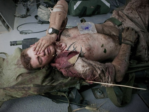 Injured Marine Cpl. Burness Britt reacts after being lifted onto a medevac helicopter from the U.S. Army's Task Force Lift
