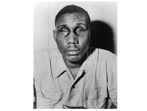 This photo from the NAACP, now in the Library of Congress, shows Sgt. Isaac Woodard Jr., a WWII Army veteran, who was attacked hours after his honorable discharge by South Carolina police while he was still in uniform. The Feb. 12, 1946 beating left him blind but helped galvanize the civil rights movement. (Library of Congress)