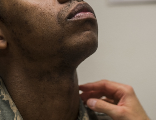 The Air Force is now allowing airmen with pseudofolliculitis barbae, a condition causing razor bumps and painful ingrown beard hairs that commonly affects Black men, to ask for a five-year medical shaving waiver instead of a one-year waiver. (Senior Airman Colville McFee/Air Force)