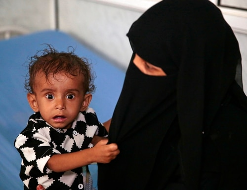 A woman holds her malnourished boy at a feeding center in a hospital in Hodeida, Yemen, last week. With US backing, the United Arab Emirates and its Yemeni allies have restarted their all-out assault on Yemen's port city of Hodeida, aiming to wrest it from rebel hands. Victory here could be a turning point in the 3-year-old civil war, but it could also push the country into outright famine. Already, the fighting has been a catastrophe for civilians on the Red Sea coast. (Hani Mohammed/AP)