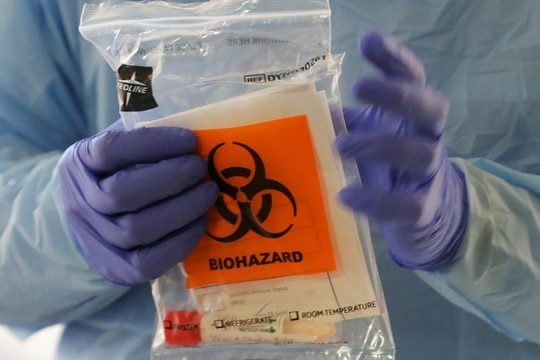 A nurse at a drive-up coronavirus testing station, set up by the University of Washington Medical Center, holds a bag containing a swab used to take a sample from the nose of a person in Seattle. (Ted S. Warren/AP)