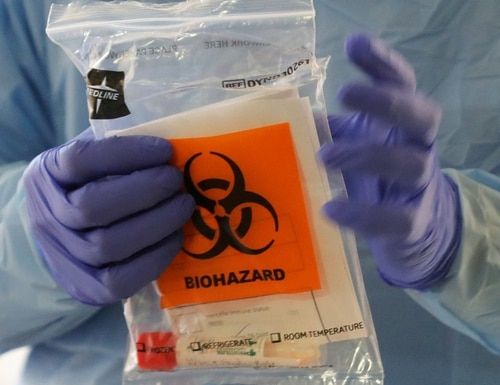 A nurse at a drive-up COVID-19 testing station, set up by the University of Washington Medical Center, holds a bag containing a swab used to take a sample from the nose of a person in his or her car on Friday in Seattle. (Ted S. Warren/AP)