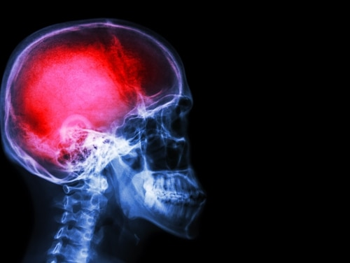 Army-funded research shows possible Alzheimer's link with blast exposure, even without a brain injury diagnosis. (Army)
