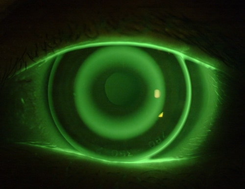 Research into soft robotic contact lenses that respond to the electrical fields produced by human eye movements could lead to new wearable sensors. Eventually. (Antonio Calossi / Wikimedia Commons (CC BY-SA 3.0) )