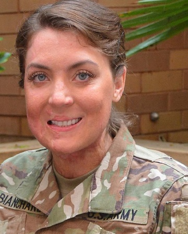 1st Lt. Katie Ann Blanchard is recovering at Brooke Army Medical Center on Joint Base San Antonio-Fort Sam Houston.